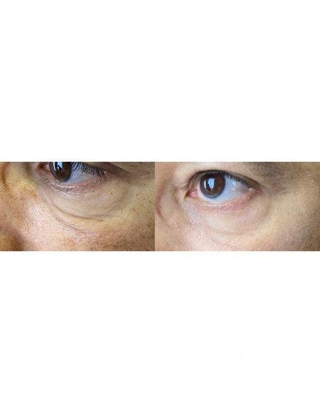 Forget About Age Instant Eyes Love 2 x 3 ml